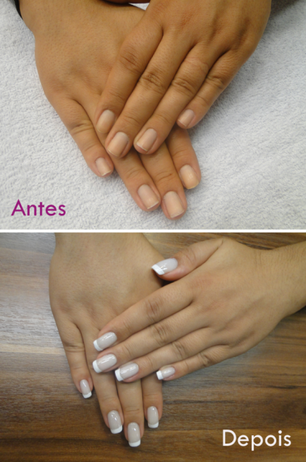 antes-e-depois-unhas-de-porcelana-magic-nails-620x936